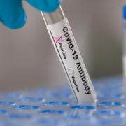 covid19-antibody-test
